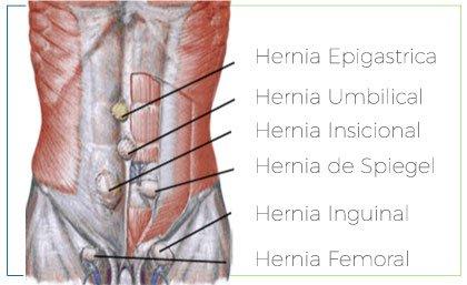 dr-arias-hernias.verde
